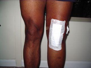 Knee Oct 13 a