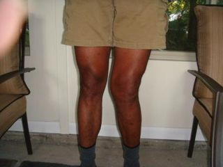 Knees, Oct 2009
