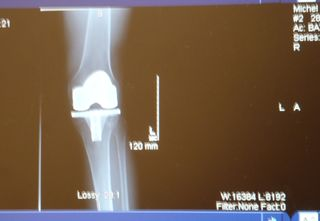 Knee Xray Sept 2011, single front view